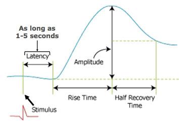 一个单独的EDA测量曲线图,表现的是潜伏,反应和恢复周期
