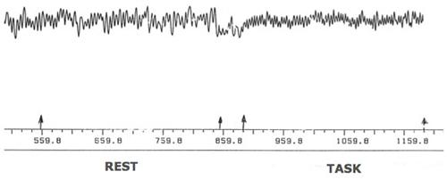 当测试开始时,我们就能清楚地看到心率的改变和搏动间隔的改变